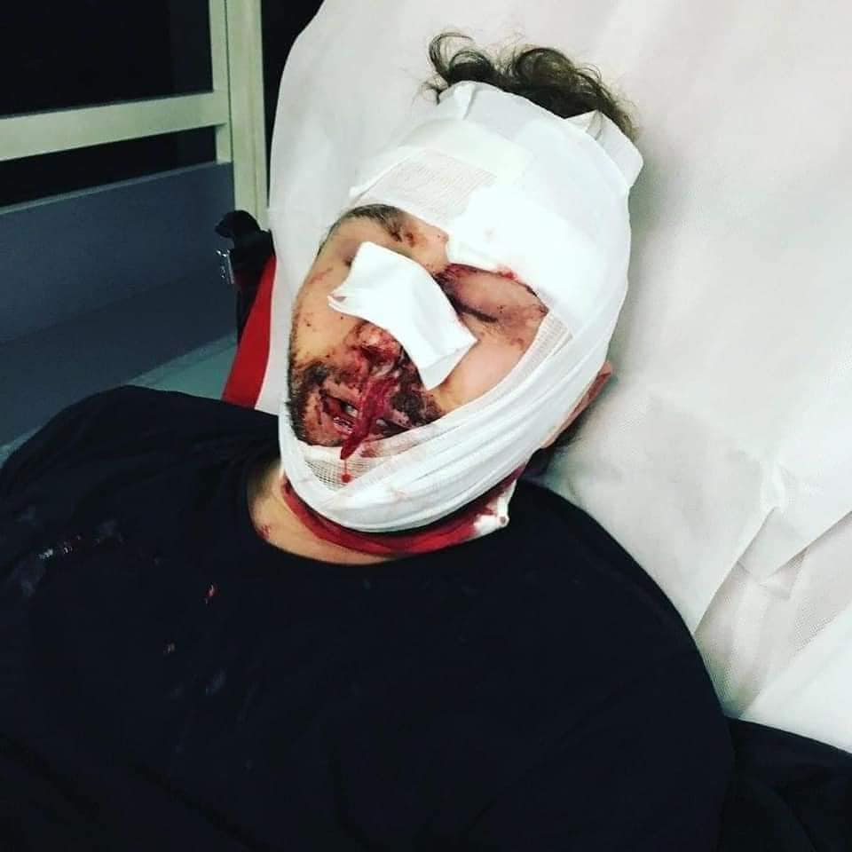 صحفي سوري يتعرض لإصابات خطرة بهراوات الشرطة الفرنسية